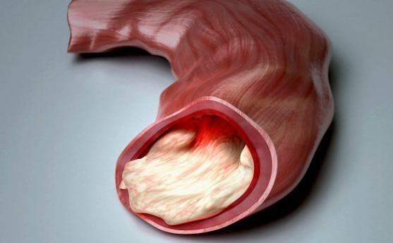 血管干净人不老,那么如何清洗血管?_拓诊卫生资讯