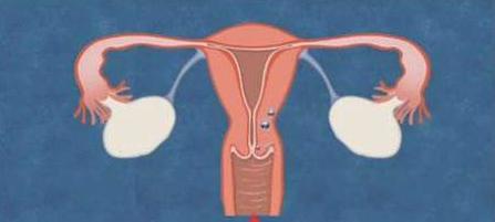 你的子宫健康吗 11个子宫发出的求救信号