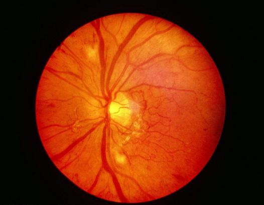 基因疗法有望让眼疾患者复明