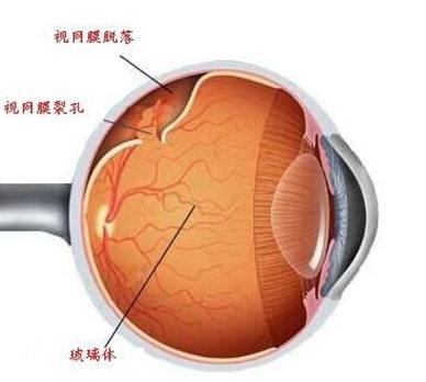 眼部免疫细胞有望治疗视网膜病变