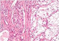 研究鉴定出一种新的肾癌驱动蛋白