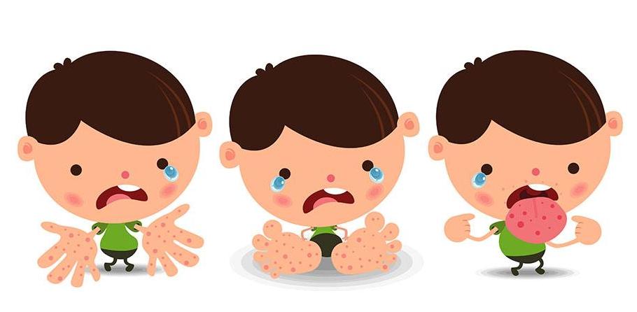 手足口病有哪些傳染途徑_拓診衛生資訊