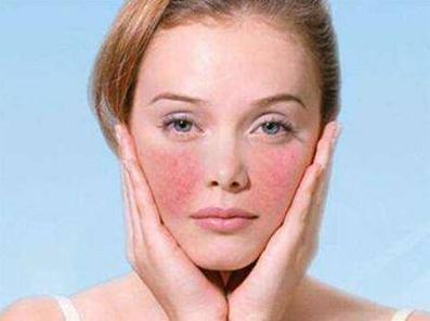 皮肤过敏病发时是该如何处理