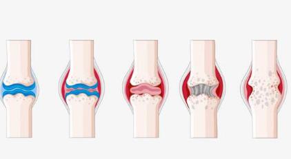 老年人常見的骨關節病有哪些?_拓診衛生資訊