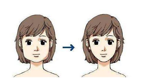 瘦臉比較有效的方法有哪些_拓診衛生資訊