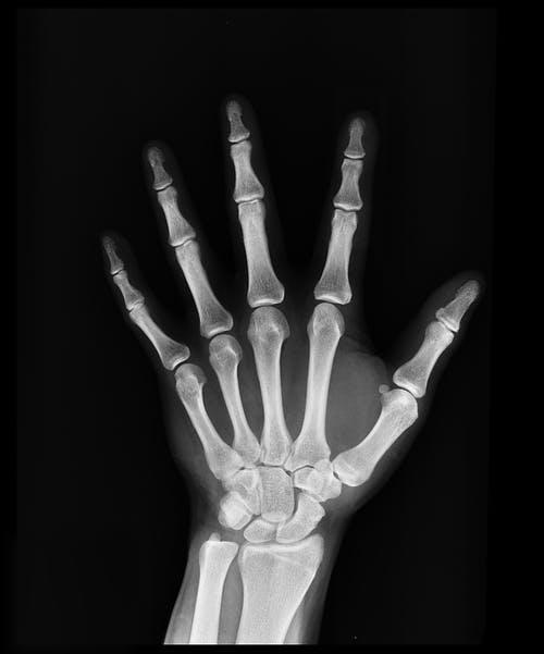 骨质疏松症防治11要点_拓诊卫生资讯