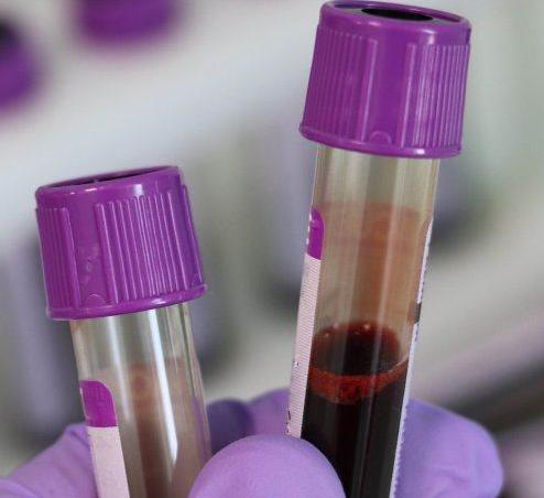 只需抽取一管血 红细胞疗法有望治好这些疑难病