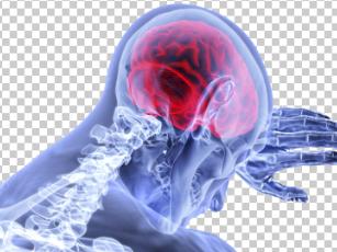 周围神经损伤的电生理诊断